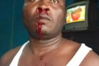 Wassa: Another policeman bloodily beaten by civilian gang