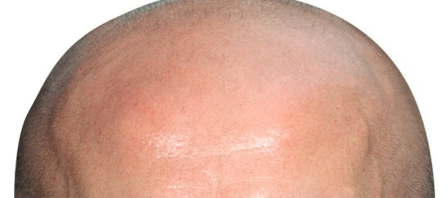 Defective immune cells may play role in hair loss
