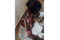 Woman roasts sister-in-law with petrol in fight over baby custody