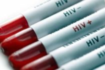 More young people getting HIV/AIDS infection – Aids Commission