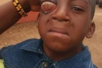 5-Year old Needs Support to Correct Eye Defect